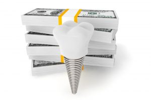 Cost of dental implants concept.