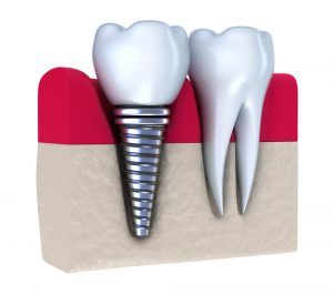 dental implants provide good solution for tooth loss